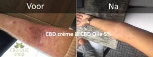 Voor persoonlijk en deskundig advies op maat over het gebruik van producten met CBD, kunt u terecht bij cbd-olie-shop.nl.